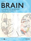 Speech entrainment enables patients with Broca's aphasia to produce fluent speech