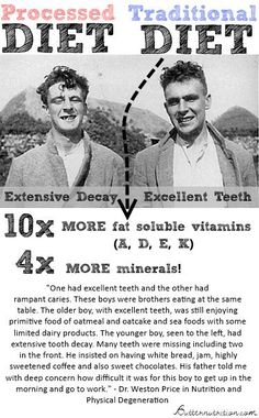 Weston Price was an America dentist that embarked on a research journey around the world to find out what caused tooth decay. Here is what he discovered. Teeth Health, Oral Health, Dental Health, Health And Nutrition, Health And Wellness, Healthy Teeth, Gum Health, Health Facts, Nutrition Tips