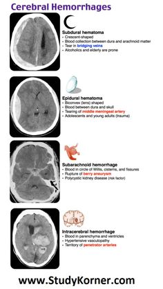 Hemorrhages Neurological Assessment Med School An epidural hematoma presents as a hyperdense lenticular shaped hematoma in the temporalregion, and it is caused by a tear in the middle meningeal artery. A lucid interval is often associated with this bleed. Nursing School Notes, Icu Nursing, Nursing Tips, Medical School, Medical Facts, Medical Science, Computer Science, Neurological Assessment, Science Classroom