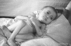 Liberated baby: One of the babies that was among the liberated prisoners of KL Auschwitz. (Auschwitz-Birkenau State Museum Archives) via www.auschwitz.org