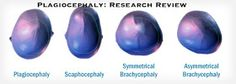 Dinosaur Physical Therapy: Plagiocephaly: Research Review