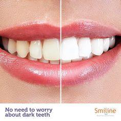 Poor dental hygiene and food habits often lead to discolouration of teeth.  #Discolouration #Dentalhygiene #Treatment #Health #Dentist #Smiline