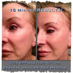 Who needs Botox when you have Seacret with no chemicals... Www.seacretdirect.com/agent99
