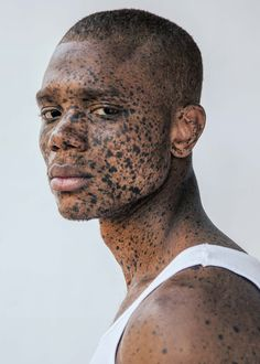 What is Vitiligo? Vitiligo is a skin disorder that causes patches of white skin to appear on different parts of the body. Poses, Pretty People, Beautiful People, Vitiligo Treatment, Unique Faces, Interesting Faces, Drawing People, Black Is Beautiful, Freckles