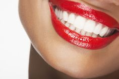 Blanqueamiento dental ¿Cómo?