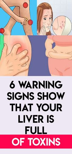 6 Warning Signs Show That Your Liver is Full of Toxins - Page 3 of 3 - mesning Health And Fitness Articles, Fitness Tips, Health And Wellness, Health Fitness, Women's Health, Health Care, Yoga Fitness, Mans Health, Daily Health Tips
