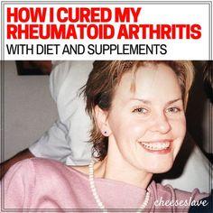 My Story: How I Cured My Rheumatoid Arthritis