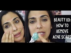 Tutorial | Beauty 101 How to Get Rid of Acne Scars (THIS WORKS)! – Huda Beauty – Makeup and Beauty Blog, How To, Makeup Tutorial, DIY, Drugstore Products, Celebrity Beauty Secrets and Tips