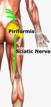 sciatic nerve pain - Help is Here http://findmedicalsolutions.com/sciatica/#
