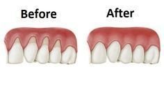 Er zijn een aantal natuurlijke middelen die je kunnen helpen bij het gevecht tegen het zich terugtrekkende tandvlees. We moete...