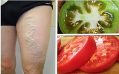 Cure Varicose Veins With The Help Of Tomato Holistic Remedies, Skin Care Remedies, Acne Remedies, Health Remedies, Natural Remedies, Allergy Remedies, Arthritis Remedies, Headache Remedies, Arthritis Treatment