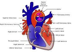 Patent ductus arteriosus - Wikipedia, the free encyclopedia