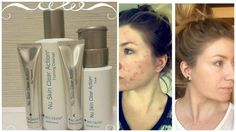 Transformation using our Clear action Treatment after 1 Month! Beauty Box, Beauty Secrets, Beauty Skin, Galvanic Spa, Nu Skin, Healthy Skin Care, 1 Month, Acne Treatment, Clear Skin