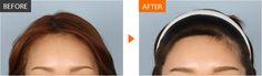 #Banobagi #Plasticsurgery #Cosmeticsurgery #Beauty #Women #Gangnam #Seoul #Korean #Makeover #Life #Health #Hairline #Hair #Hairimplant #Hairtransplant #kbeauty #beautiful #newlife #changelife #plasticsurgeryinkorea For More Information in English,http://m.engbanobagi.comEmail: english@banobagi.com WhatsApp : +82-10-2216-6508