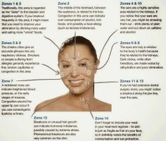 """What I learned from """"Acne Face Mapping"""" about my current Breakouts! #skin #acne"""