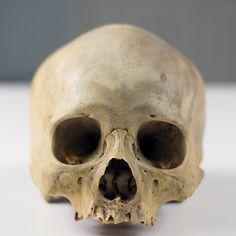 UB_Skull1_2.jpg