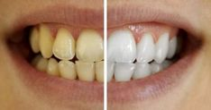 Tartar is the yellow or brown mineral deposit on teeth, which can lead to periodontitis, especially if it increases and without removal. Activated Charcoal Teeth Whitening, Teeth Whitening System, Natural Teeth Whitening, Vik Vaporub, Dental Check Up, Root Canal Treatment, Smile Makeover, Mosquitos, Stained Teeth