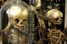 Musée Dupuytren, squelettes d'enfant