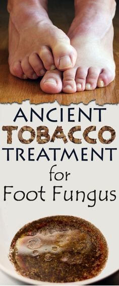 Ancient tobacco treatment for foot fungus