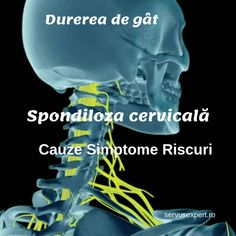 De ce apare spondiloza cervicală (durerea de gât)? Cine are risc crescut? Health And Beauty, Health And Wellness, Health Fitness, Fitness Planner, Fitness Tips, Workout Template, Best Weight Loss Exercises, Printable Workouts, Boxing Workout