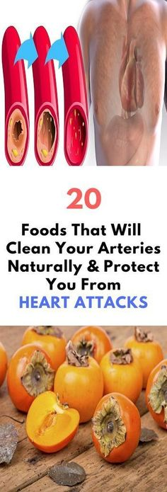 20 Foods That Will Clean Your Arteries Naturally & Protect You From Heart Attacks! These 20 Foods That Will Clean Your Arteries Naturally & Protect You From Heart Attacks! Causes Of Heart Attack, Prevent Heart Attack, Healthy Drinks, Healthy Tips, Healthy Foods, Healthy Bodies, Clean Foods, Healthy Protein, Healthy Choices