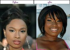 "Jennifer Hudson acquired new appears to be like right after getting plastic surgery in 2014 - Jennifer Hudson' a very beautiful woman with strong pointy nose telling everyone; ""I'm pretty and you can just go sober in the corner if you wanted to mess with me"". Jennifer Hudson after before plastic surgery She always makes sure that she is the one to stare at in a... #JenniferHudsonAfterBeforeSurgery, #JenniferHudsonAfterPlasticSurgery, #JenniferHudsonBef"