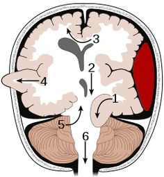 Supratentorial herniation 1. Uncal (transtentorial) 2. Central 3. Cingulate (subfalcine) 4. Transcalvarial