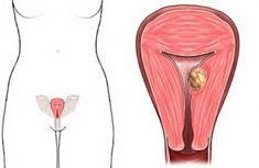 pronounced and the tendemess is at MeBurney's point, yvhieh is higher than thesite of ectopic pregnancy. subserous fibroid and pregnancy with natural treatment Torsion of peduneulated subsero… Fibroid Uterus, Uterine Fibroids, Health And Beauty Tips, Health And Wellness, Health Fitness, Ectopic Pregnancy, Natural Treatments, Beauty Hacks, Cancer