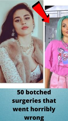 50 #botched #surgeries that went #horribly wrong Girls Fashion Clothes, Girl Fashion, Aesthetic Indie, Quote Aesthetic, Funny Prank Videos, Funny Memes, Extravagant Wedding Cakes, Orange Eye Makeup, Beautiful Pakistani Dresses