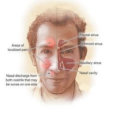 Acute sinusitis (acute rhinosinusitis) causes the cavities around your nasal passages (sinuses) to become inflamed and swollen. This interferes with drainage and causes mucus to build up. @vaishali