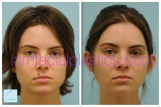 This young lady had a mole removed from her upper lip and is shown before and six months after her procedure. Mole Removal, Upper Lip, Young Women, Facial, How To Remove, Lips, Dallas, Facial Care, Face Care