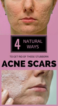 4 natural ways to get rid of those stubborn acne scars - fre Cystic Acne Treatment, Oily Skin Treatment, Scar Treatment, Natural Acne Treatment, Acne Skin, Acne Scars, Acne Mask, Anti Aging, Natural Acne Remedies