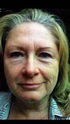 Halbseiten-Demo - die linke Seite des Gesichts wurde mit dem Nu Skin ageLOC Galvanic Spa und den dazugehörigen Treatments behandelt. Deutlicher Unterschied sichtbar!