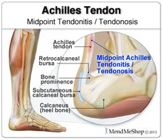 A few inches above the heel at the 'midpoint' of the tendon is at less risk of injury. The tissue in this area is dense, increased amount of blood to support the above attaching calf muscles. While this is the lesser common of the two Achilles Tendonitis, it more commonly affects younger and active people.