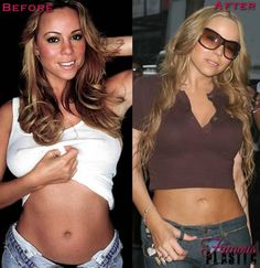 9 Best Liposuction Images Liposuction Plastic Surgery Mommy Makeover