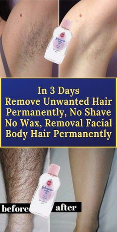 In 3 Days Remove Unwanted Hair Permanently, No shave No wax Removal Facial & Body Hair Permanentl… in 2020 Underarm Hair Removal, Permanent Facial Hair Removal, Upper Lip Hair Removal, Back Hair Removal, Remove Unwanted Facial Hair, Facial Waxing, Unwanted Hair, Hair Removal Diy, Homemade Hair Removal
