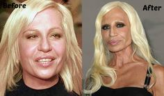Donatella Versace Plastic Surgery Before and After Photo