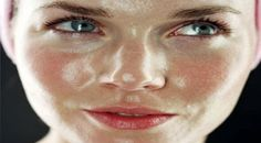 Home Remedies for Oily Skin Treatment