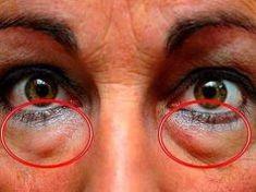 4 természetes mód a szem alatti táskák ellen