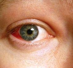 ciprofloxacin eye drops dosage