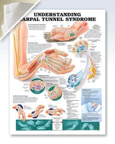 Understanding Carpal Tunnel Syndrome (d) 20x26 Anatomy Poster