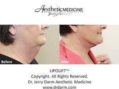 Dr. Darm, LipoLift Before and After Neck - N.B. Slide3