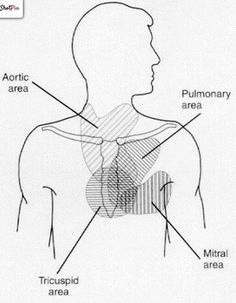 The four primary areas of auscultation represent the general regions where heart sounds and murmurs of the four cardiac valves are often best heard and defined. Note that the areas overlap considerably and that sounds and murmurs are not limited to these sites, often extending to the lateral chest wall, abdomen, and back.