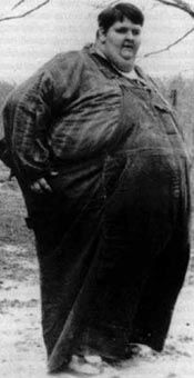 Robert Earl Hughes was, during his lifetime, the heaviest human being recorded in the history of the world. At the age of six, he weighed about 92 kilograms (200 lb); at ten, he weighed 171 kilograms (380 lb). His excessive weight was attributed to a malfunctioning pituitary gland. His chest was measured at 3.15 metres (10.3 ft), and he weighed an estimated 486 kilograms (1,070 lb) at his heaviest. By the time of his death, he weighed over half a ton.