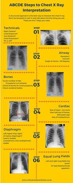 to interpret the Chest X Ray using a simple structured approach.How to interpret the Chest X Ray using a simple structured approach. The Human Body, Nursing Notes, Nursing Tips, Nursing Programs, Nursing Information, Family Nurse Practitioner, Nurse Anesthetist, Respiratory Therapy, Emergency Medicine