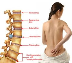 Vitamins for Back Pain Relief