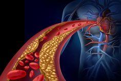 O entupimento de artérias é um risco para a nossa vida, mas a natureza nos dá uma solução. Conheça alguns remédios naturais para desentupir veias e artérias