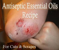 antiseptic essential oil recipe 5 drops Lemon Essential Oil 10 drops Tea Tree Oil Essential Oil 5 drops Eucalyptus Essential Oil 2 ounces Filtered Water Add filtered water into a clean empty spray bottle. Then add each essential oil in the amounts listed above and put top back on securely. Shake for 30 seconds before spraying on cuts and scrapes.
