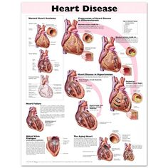 Heart Disease anatomy poster congestive heart failure, mitral valve prolapse and the effects of an aging heart are depicted. Cardiology chart for doctors and nurses. Mitral Valve Prolapse, Heart Anatomy, Cardiac Nursing, Pediatric Nursing, Blood Pressure Remedies, Medical Coding, Nursing Tips, Nursing Board, Health And Wellness
