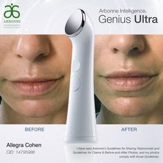 Arbonne Skin Care Before And After Doctor Heck